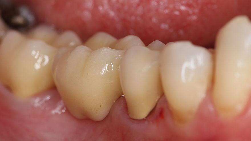 Backenzahn zahnlücke tooth whitening